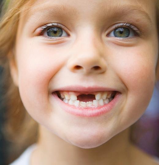 أسنان-لبنية